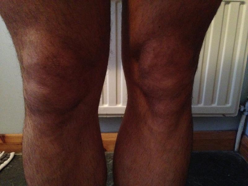 Paul Ali Injured Knee